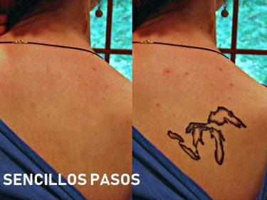 borrar un tatuaje